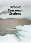 Difficult Caesarean Sections